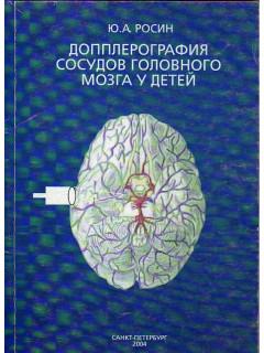 Допплерография сосудов головного мозга у детей